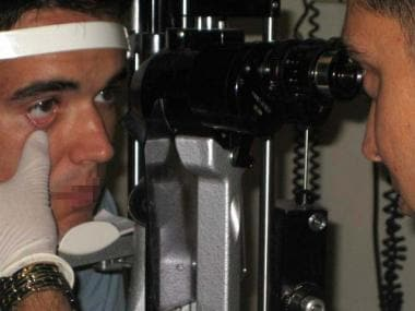 Positioning at the slit lamp.