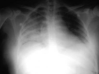 Chest radiograph of a patient with massive aspirat