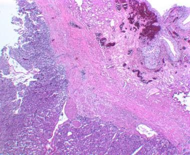 Paraganglioma of the urinary bladder. Microscopic