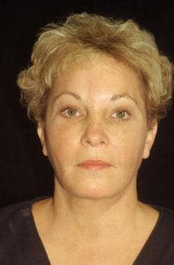 Midface facelift. After: anteroposterior view. The