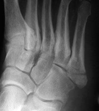 Fractures, foot. Proximal fifth metatarsal avulsio