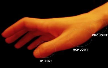 Anatomic locations of joints of thumb.