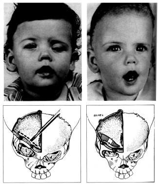Congenital, synostoses. Plagiocephaly due to right