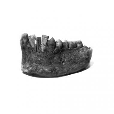 Forensic dentistry (forensic odontology). Mayans c