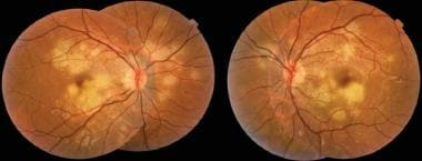 Color fundus photography images show multiple bila