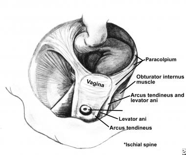 The vagina and supportive structures. Paracolpium