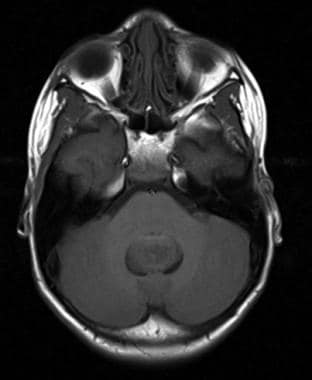 T1-weighted axial magnetic resonance image of a po