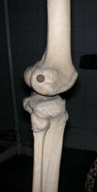 Knee, as seen from side.