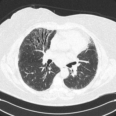 CT scan of chest in patient with acquired right mi