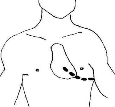 A skin incision is made above the fifth rib into t