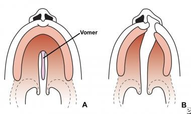 Variations of cleft palate.