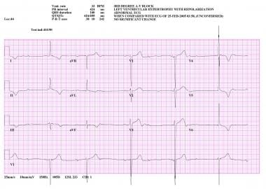 Electrocardiogram from patient in complete heart b