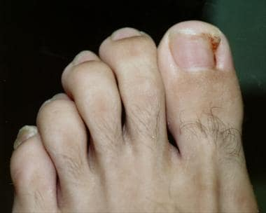 Appearance of typical ingrown toenail.
