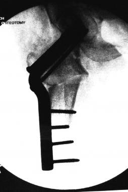 Final image showing a valgus-producing osteotomy w