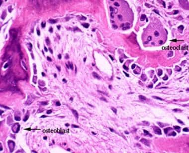 This image depicts bone remodeling with osteoclast