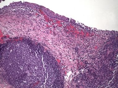 Pathology of Cystitis. Follicular cystitis. Lympho