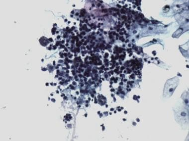 Pathology of Cystitis. Follicular cystitis. A foll