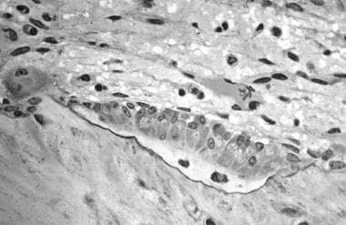 In this image, several osteoblasts display a promi