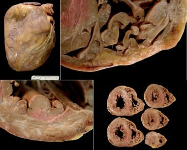 Gross findings at autopsy, arrhythmogenic right ve