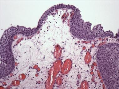 Pathology of Cystitis. Polypoid cystitis. Broad, p