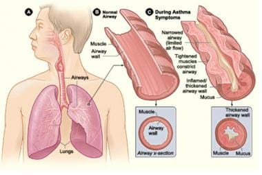Asthma in older adults. Lung tissue normal versus