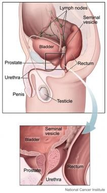 The prostate is part of the male reproductive syst