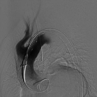 Predeployment angiogram showing the endograft in t