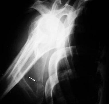 Scapula fracture on Y view.