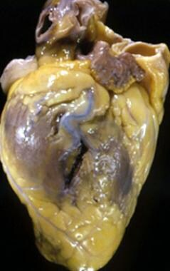 Myocardial Rupture. Photograph of the heart of 43-