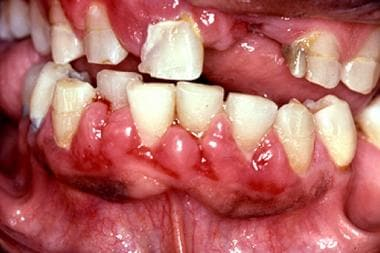 Gingival enlargement in a 41-year-old man with a s
