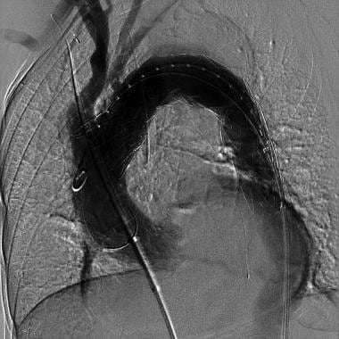Angiogram performed following endograft deployment
