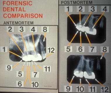 Forensic dentistry (forensic odontology). These im