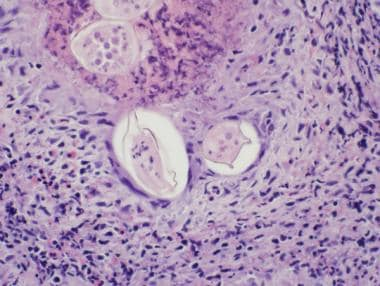 Pathology of Cystitis. Schistosoma-associated cyst