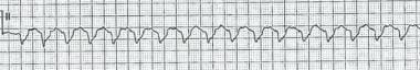 This tracing depicts monomorphic ventricular tachy