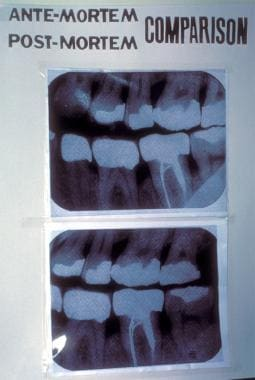 Forensic dentistry (forensic odontology). These ph