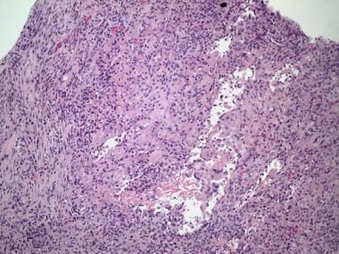 Pathology of Cystitis. Postresection granuloma. Fo