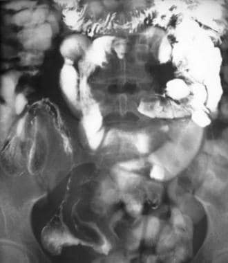 Crohn disease of the terminal ileum with CT and so