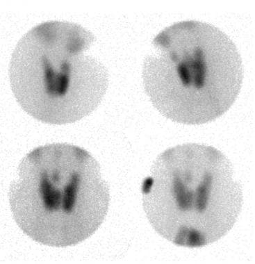 Thyroid nuclear scan of a patient with a euthyroid