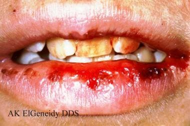 Herpes simplex virus type 1. Primary herpes can af