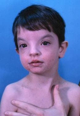 A child with Wolf-Hirschhorn syndrome. Note the ch