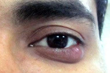 Photograph of a left lower lid chalazion.