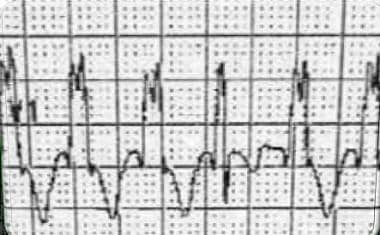 The electrocardiogram shows a form of idiopathic v