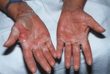 Desquamative erythroderma. Reproduced with permiss