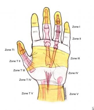 Zones of the hand. Note the relationships to the u