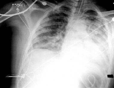 Chest radiograph in 3-year-old girl who developed