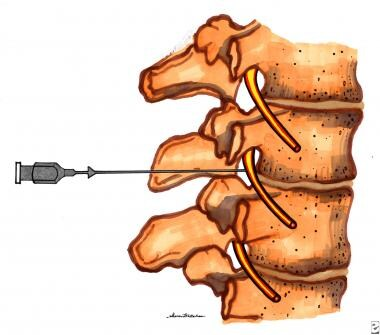 Lateral view showing needle position of lumbar par
