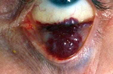 Manipulation of the tarsal conjunctiva often is ne