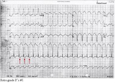 Note the retrograde P waves in this electrocardiog