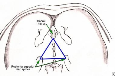 Surface anatomy of caudal block and sacral hiatus