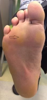 Plantar aspect of foot with arrow pointing to call